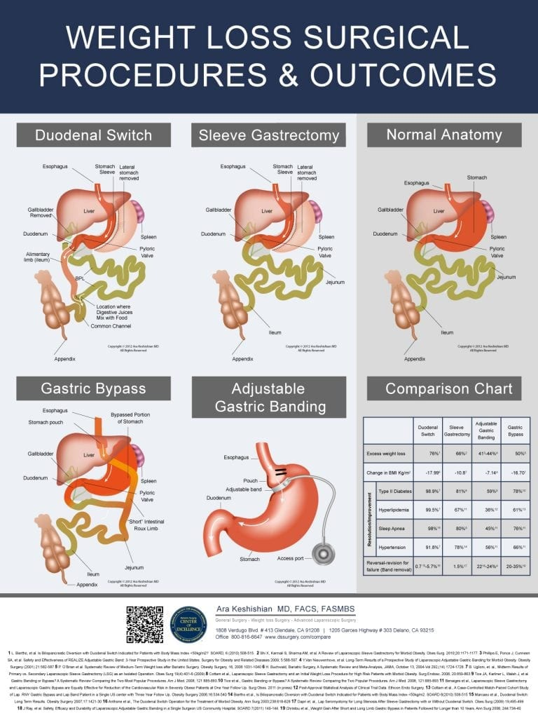 Weight Loss Surgery Poster - DSSurgery