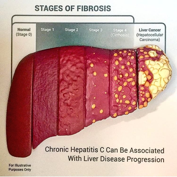 Stages of Liver Injury and Fibrosis