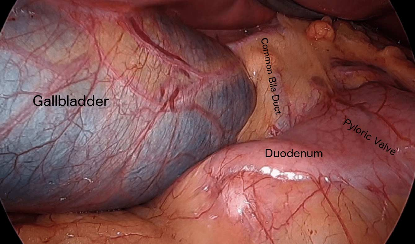 Gallbladder, Duct and Duodenum