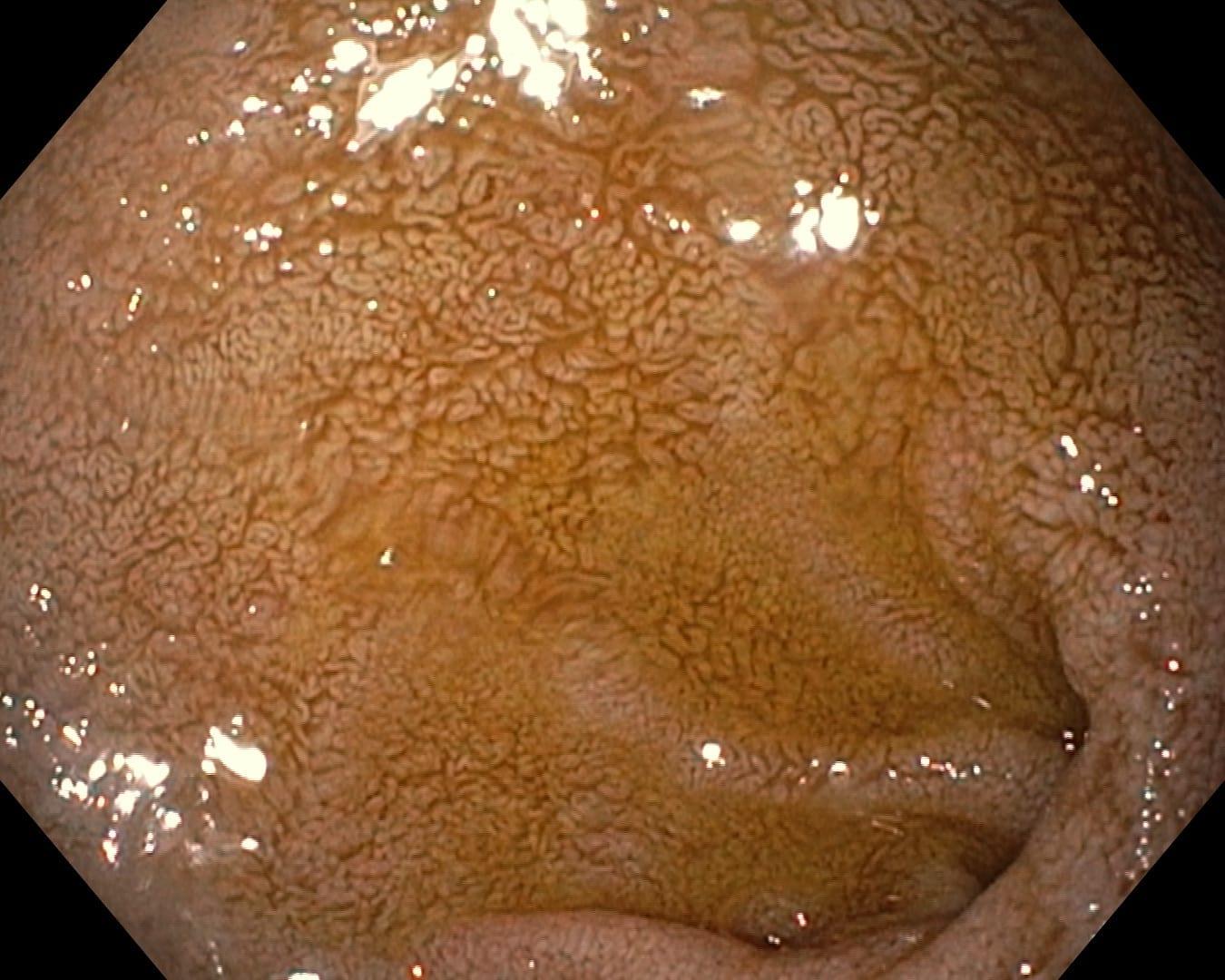 Bile Reflux Gastritis